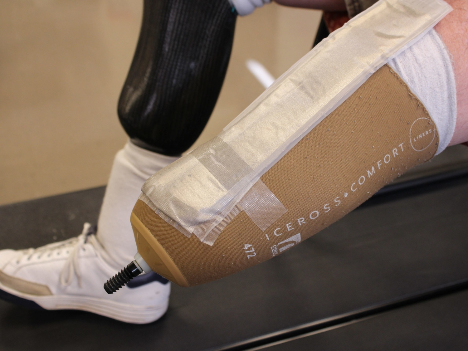 Textile sensor can detect pressure points on the socket of a prosthetic limb.